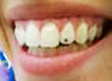 tooth strass