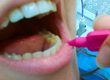 intradental cleaning